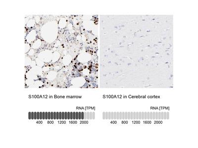 S100A12 Polyclonal Antibody