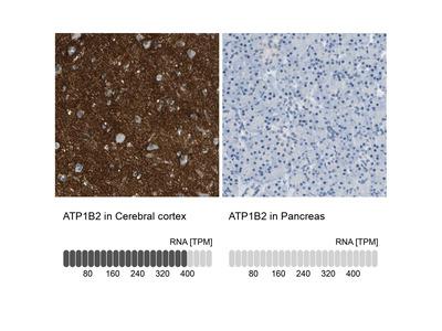 ATP1B2 Polyclonal Antibody