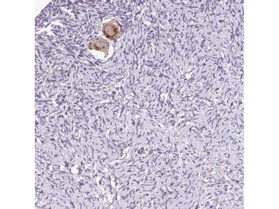 TTLL3 Polyclonal Antibody