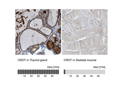 CROT Polyclonal Antibody
