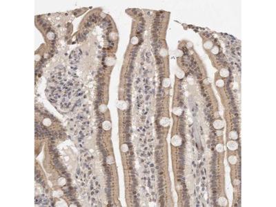 LRRC75A Polyclonal Antibody