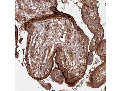 ABHEB Polyclonal Antibody