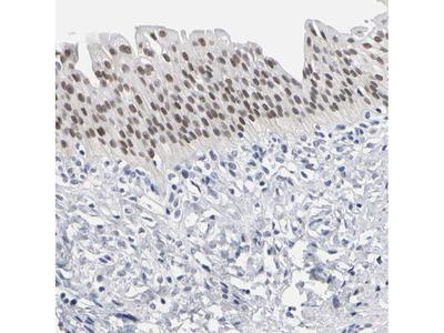 GRHL2 Polyclonal Antibody