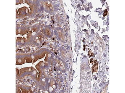 NALP6 Polyclonal Antibody