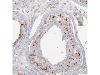 SLC2A11 Polyclonal Antibody