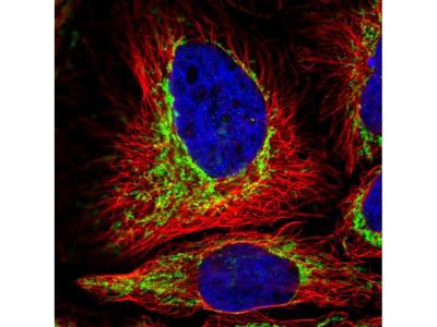 TOMM5 Polyclonal Antibody