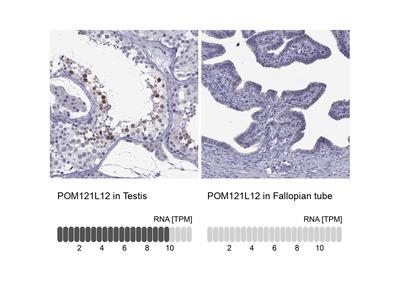 POM121L12 Polyclonal Antibody