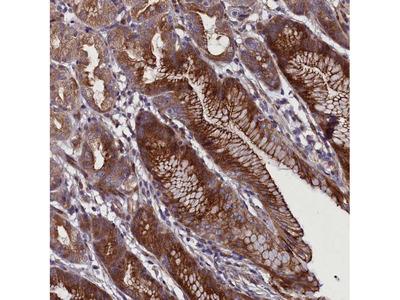 FAM195B Polyclonal Antibody