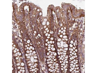 PLEKHD1 Polyclonal Antibody