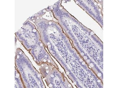 CFAP69 Polyclonal Antibody