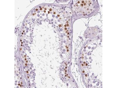 BEND2 Polyclonal Antibody