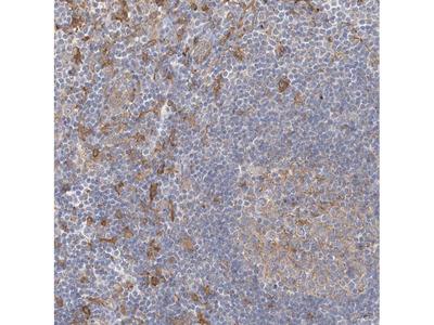 CCNJ Antibody