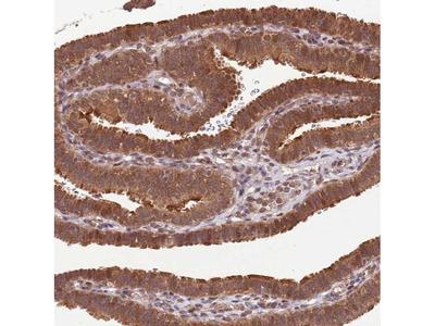 LRRC43 Polyclonal Antibody