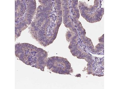 NIPA2 Polyclonal Antibody