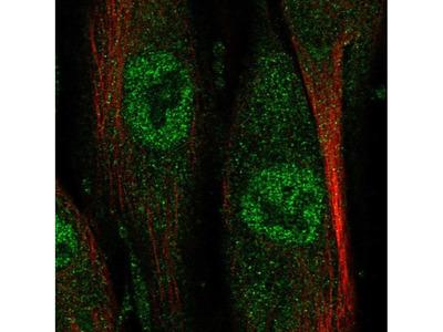 NAALADL2 Polyclonal Antibody