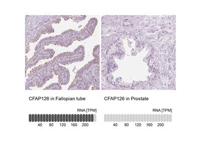 CFAP126 Polyclonal Antibody