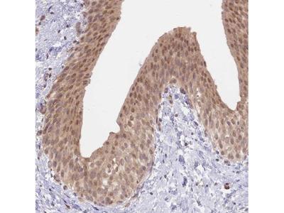 TMEM55B Polyclonal Antibody