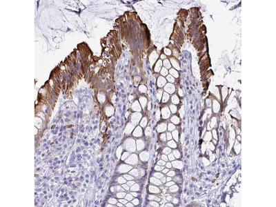 TAS2R38 Polyclonal Antibody
