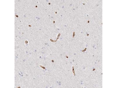 KIAA2022 Polyclonal Antibody