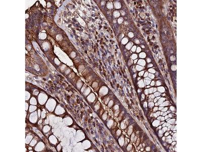 EXT1 Polyclonal Antibody