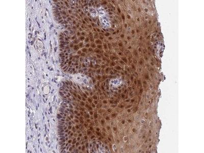 PLCL2 Polyclonal Antibody
