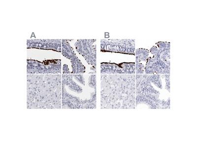 CCDC181 Polyclonal Antibody