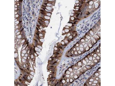 CKAP2L Polyclonal Antibody