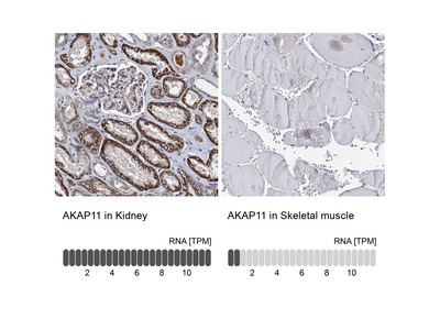 AKAP11 Antibody