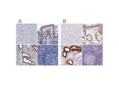 TMEM72 Polyclonal Antibody