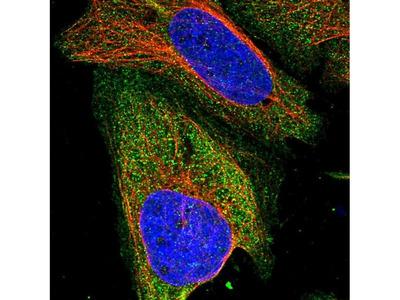 ZSWIM8 Polyclonal Antibody