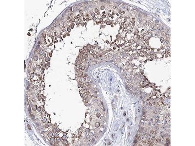 PUS3 Polyclonal Antibody
