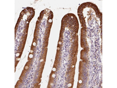 TMSB15B Antibody