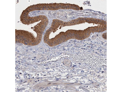 NEK8 Polyclonal Antibody