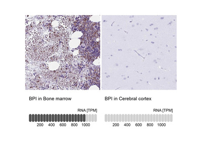 BPI Polyclonal Antibody
