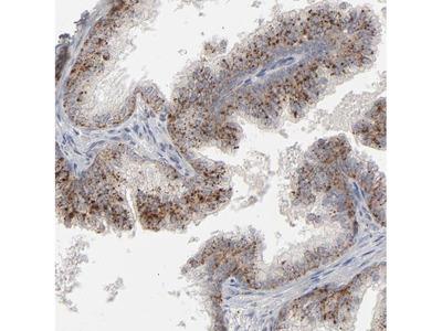POMT2 Polyclonal Antibody