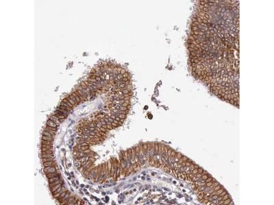 PRICKLE3 Polyclonal Antibody
