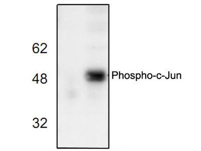 Phospho-c-Jun (Ser73) Antibody