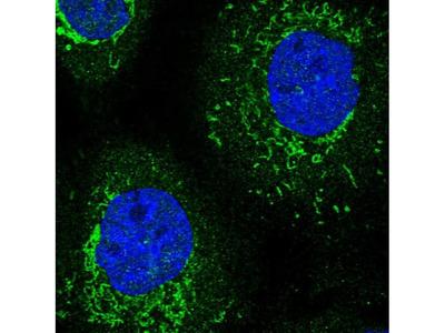 TRNT1 Polyclonal Antibody