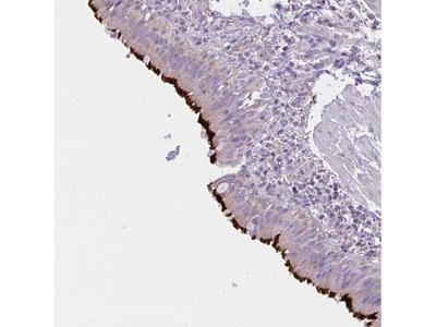 CCDC142 Polyclonal Antibody