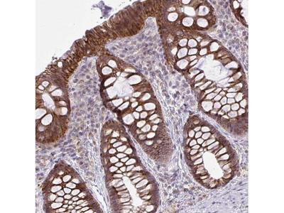 CYP20A1 Polyclonal Antibody