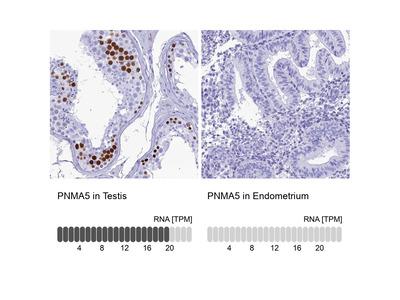 PNMA5 Polyclonal Antibody