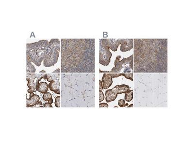 LRRC45 Polyclonal Antibody