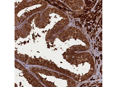 CCDC102A Polyclonal Antibody