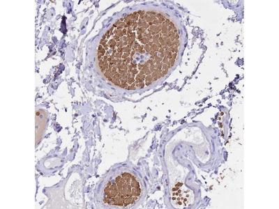 Hemoglobin alpha-1 Polyclonal Antibody