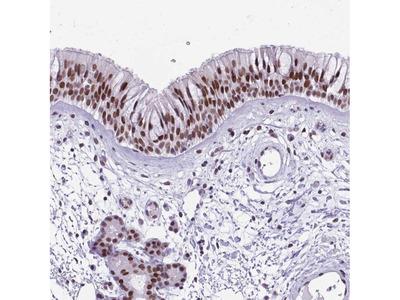 TBC1D26 Polyclonal Antibody