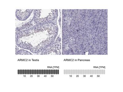 ARMC2 Polyclonal Antibody