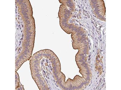OR11H4 Polyclonal Antibody