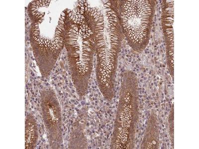 HELT Polyclonal Antibody