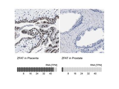ZFAT Polyclonal Antibody