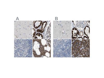 MOSC2 Polyclonal Antibody
